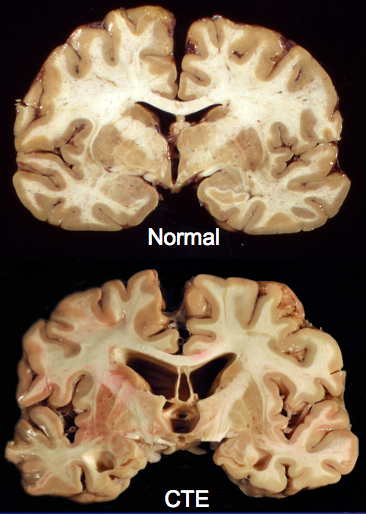 Normal and CTE Brains